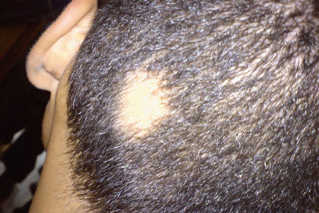Соблысением можно сражаться при помощи стволовых клеток кожи