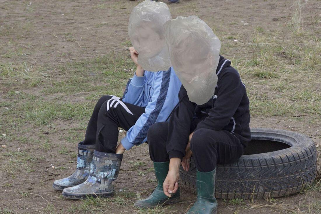 ВКрасноярском крае двое детей, пострадавшие отвоспламенения горючего, подключены кИВЛ