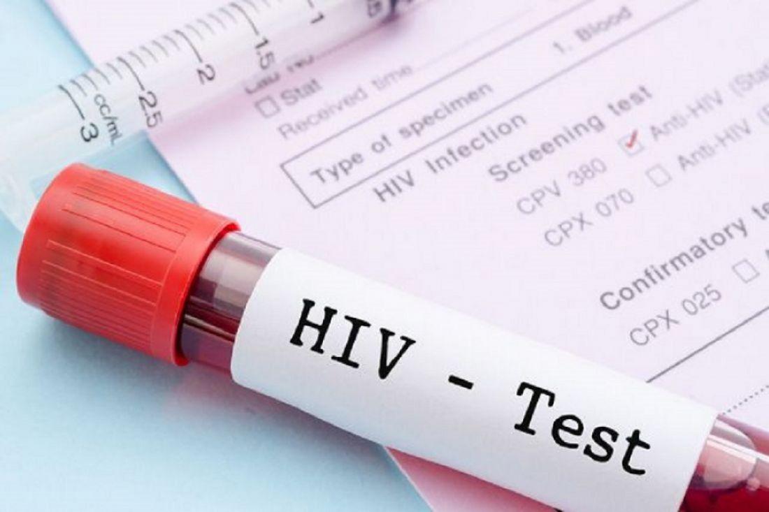 ВПензенской области стали чаще болеть сифилисом, однако менее ВИЧ